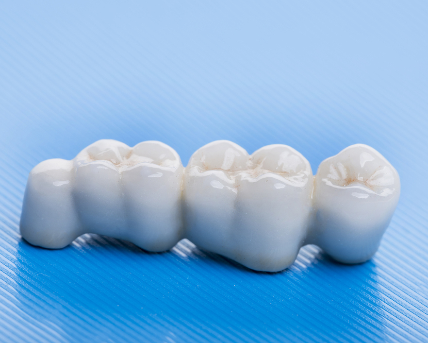 Removable implant-supported overdentures